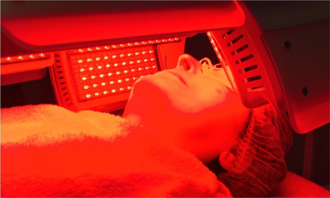 Acne and Blue Light Therapy