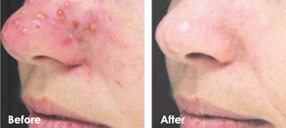 Acne Rosacea Treatment Laser Hair Removal Clinic Vaughan