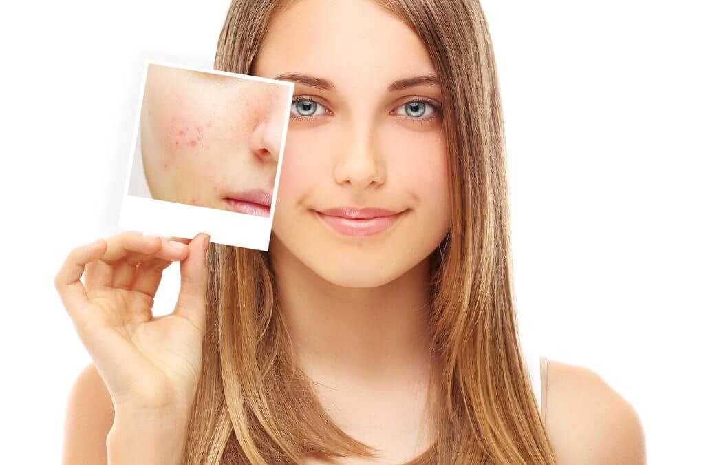 Do I Really Need Acne Scar Removal Laser Hair Removal Clinic Vaughan