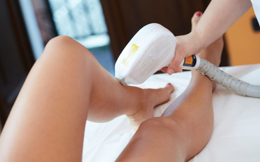 At What Age Can I Start Laser Hair Removal Treatments?