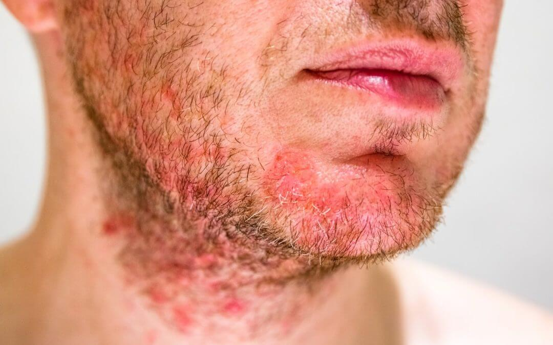 The Four Types of Sensitive Skin