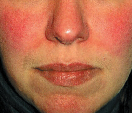 Being Mindful of Rosacea