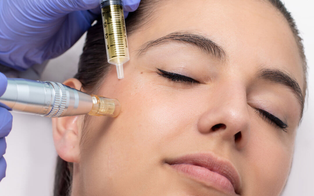 How effective is microneedling for acne scars?