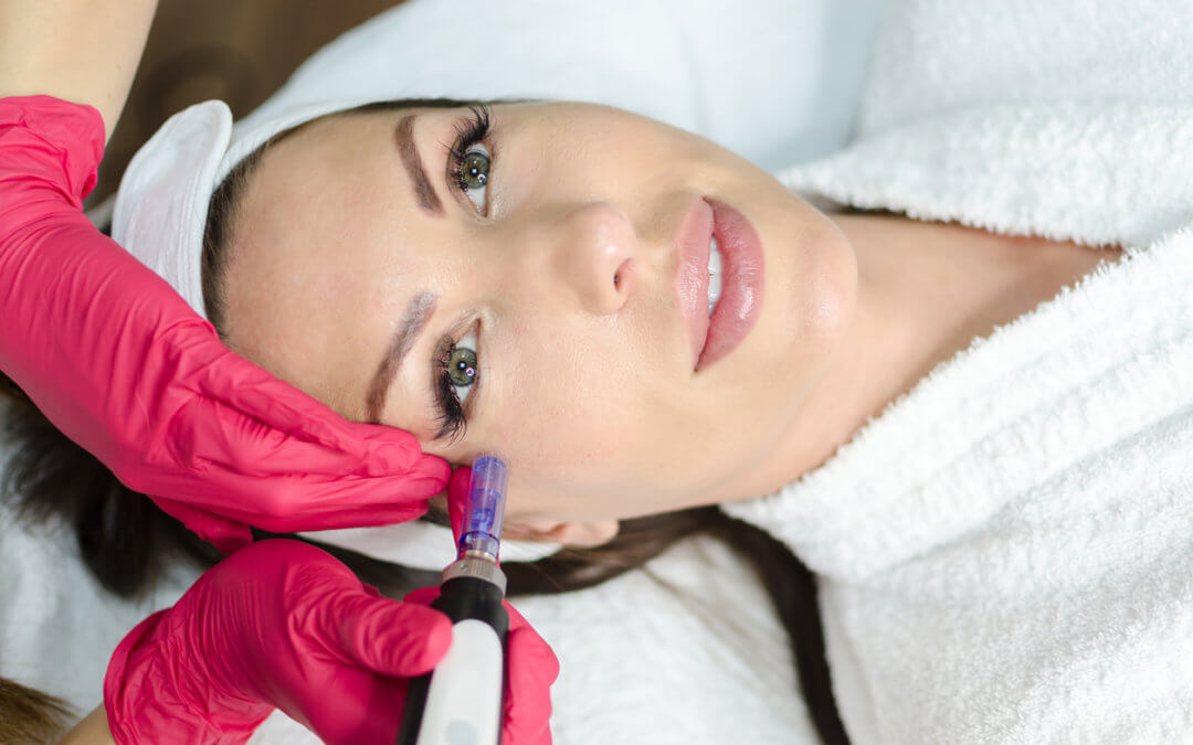 Is Microneedling a good treatment for puffiness and dark circles?