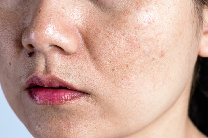 Are melasma and hyperpigmentation different?