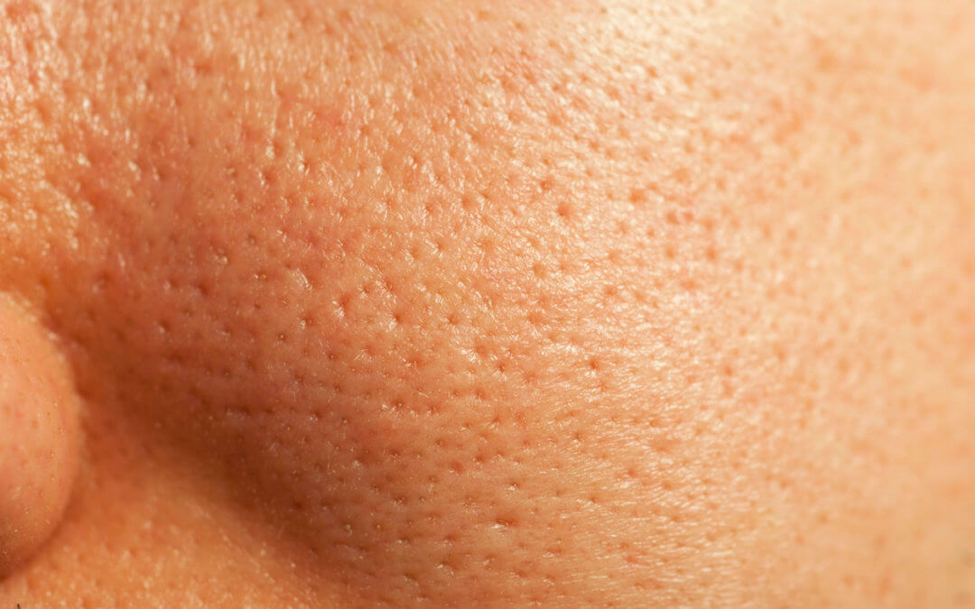 How To Effectively Shrink Your Pores