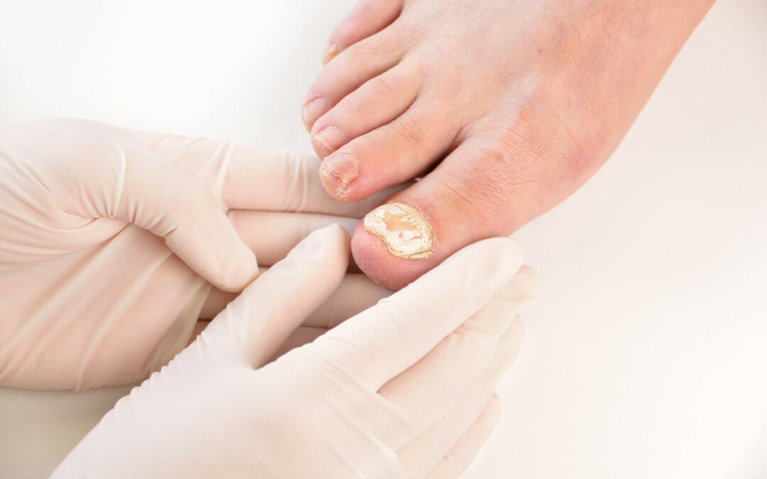 Why It is Dangerous To Ignore Toenail Fungal Infections
